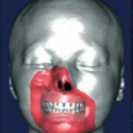greffe du visage