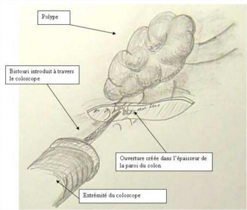 Figure 2 : Ablation du polype, découpe sous le pied du polype dans l'épaisseur de la paroi du colon grâce à un bistouri passant par le conduit du coloscope.