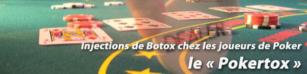pokertox : injection de Botox (toxine Botulique) chez les joueurs de Poker